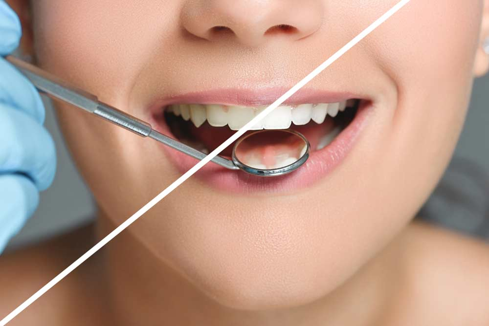 שיטות מומלצות להלבנת שיניים